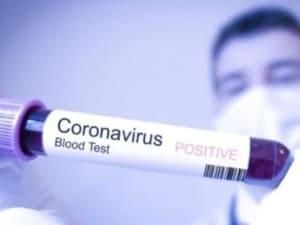 2 нові випадки коронавірусної інфекції за минулу добу