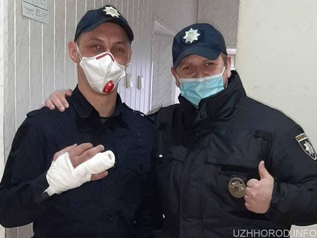 патрульний зломив палець фото